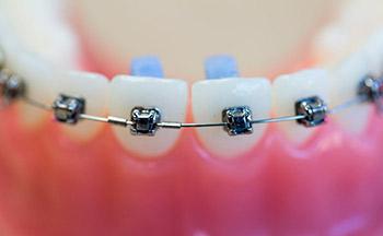 Tratamientos con brackets personalizados insignia