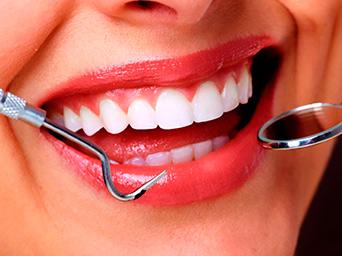 Tratamientos de estética dental en Granada